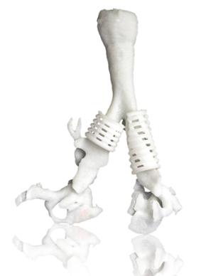 3D_printed_tracheal_splint
